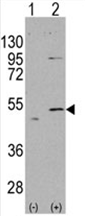 AP11468PU-N - ALDH5A1 / SSADH