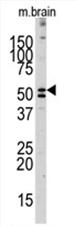 AP11472PU-N - Alkaline phosphatase / ALPL