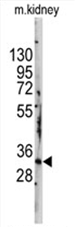 AP11474PU-N - STAP1 / BRDG1