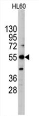 AP11482PU-N - Alkaline phosphatase / ALPI / IAP