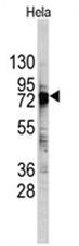 AP11490PU-N - DDX3X