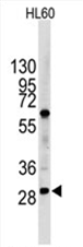 AP11494PU-N - LIN28B
