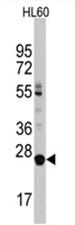 AP11495PU-N - LIN28B