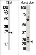 AP13096PU-N - Gremlin-1 / GREM1