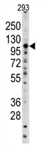 AP11501PU-N - Sal-like protein 4 (SALL4)