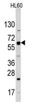 AP11502PU-N - GLUT2 / SLC2A2