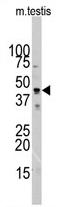 AP11505PU-N - alpha 1 cardiac muscle Actin / ACTC1