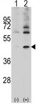 AP11506PU-N - alpha 1 cardiac muscle Actin / ACTC1