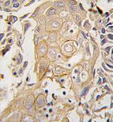 AP11516PU-N - CD4