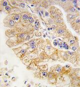 AP11517PU-N - CD4