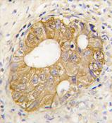 AP11521PU-N - Cadherin-3