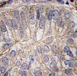 AP11522PU-N - Cadherin-3