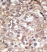 AP11524PU-N - CD281 / TLR1