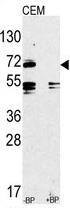 AP11527PU-N - CD282 / TLR2