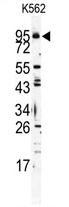 AP11538PU-N - CD286 / TLR6