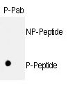 AP12701PU-N - Retinoblastoma-associated protein / RB1