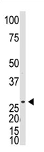 AP11559PU-N - Dickkopf-like protein 1