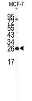 AP11588PU-N - NCS1