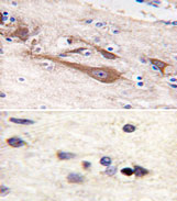 AP11591PU-N - Visinin-like protein 1 / HLP3