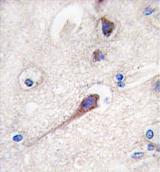 AP11595PU-N - HPCA / Hippocalcin
