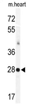 AP11608PU-N - Calsenilin