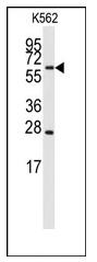 AP12516PU-N - CYP27A1