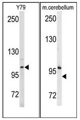 AP12517PU-N - Autotaxin / ENPP2
