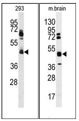 AP12520PU-N - hnRNP-K / HNRNPK