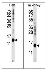 AP12535PU-N - Cytidine deaminase