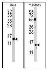 AP12536PU-N - Cytidine deaminase