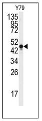 AP12426PU-N - Neuron specific enolase