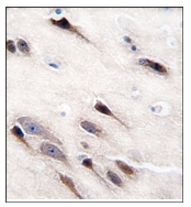 AP12427PU-N - Neuron specific enolase