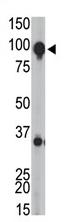 AP11647PU-N - mGluR8 / GRM8