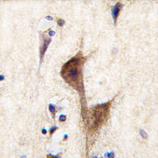 AP11651PU-N - Histamine H3 receptor