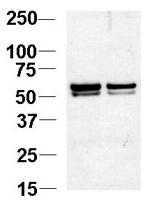 AP11715PU-N - NAP1L1