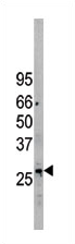 AP11734PU-N - EIF2B3