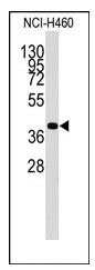 AP12354PU-N - Chondromodulin-1
