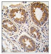 AP12359PU-N - AdoHcyase (AHCY)