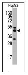 AP12360PU-N - AdoHcyase (AHCY)