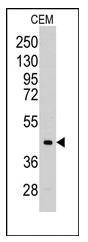 AP12365PU-N - Aldolase C / ALDOC
