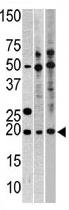 AP11750PU-N - RPL23A