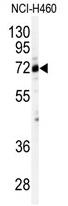 AP11756PU-N - CSTF2
