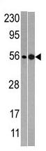 AP11767PU-N - NMD3
