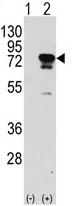 AP11772PU-N - EIF4B