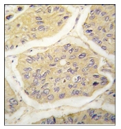 AP12414PU-N - Beta-2-microglobulin