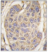 AP12415PU-N - Beta-2-microglobulin