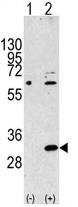 AP11781PU-N - EIF4E2 / EIF4EL3