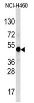 AP11820PU-N - TFAP2A / AP-2 alpha