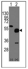 AP12334PU-N - Neuronal pentraxin-2