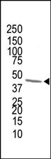 AP12197PU-N - FPP synthetase